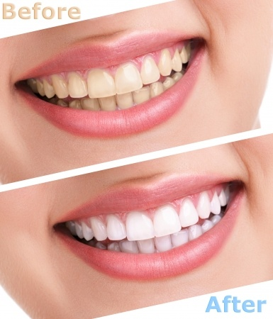 Laser teeth whitening or other whitening